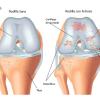 Consejos para el dolor de rodillaa