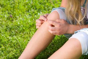 Conoce como protegerte de los mosquitos con el Antimosquitos adecuado