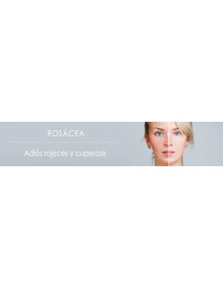 Rosácea | Cuperosis