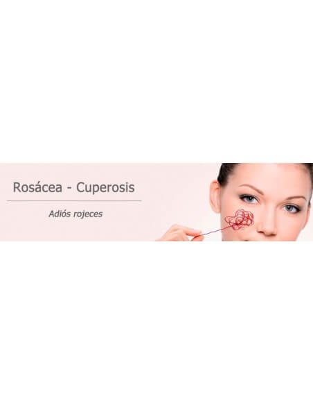 Rosacea | Cuperosis